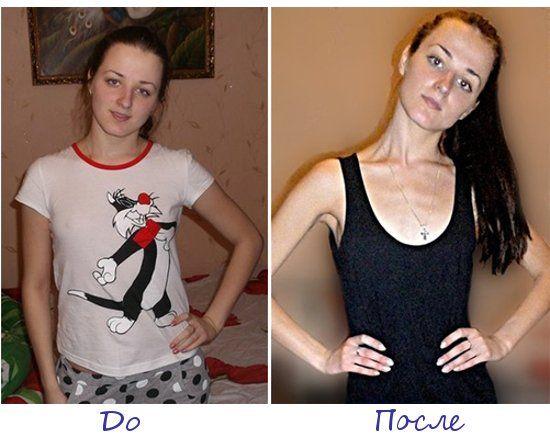 Ангелина Шмидова, Могилев (Беларусь) фото до и после похудения