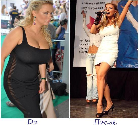 Анна Семенович фото до и после похудения