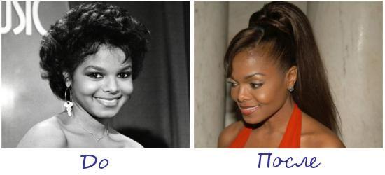Жертва пластической хирургии Джанет Джексон (Janet Jackson) фото до и после