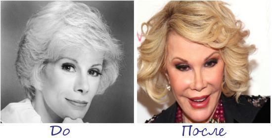 Джоан Риверс (Joan Rivers) жертва пластической хирургии фото до и после