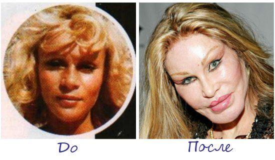 Жертва пластической хирургии Джослин Вильденштейн (Jocelyn Wildenstein) фото до и после