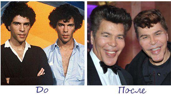 Жертвы пластической хирургии Игорь и Гришка Богдановы (Igor & Grichka Bogdanoff) фото до и после