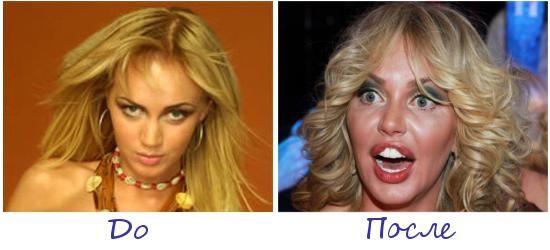 Жертва пластической хирургии Маша Малиновская фото до и после