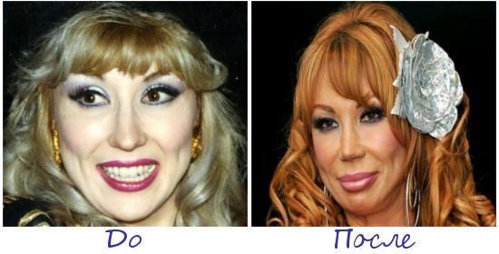 Жертва пластической хирургии Маша Распутина фото до и после