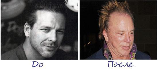 Микки Рурк (Mickey Rourke) жертва пластической хирургии фото до и после