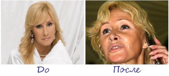 Оксана Пушкина жертва пластической хирургии фото до и после
