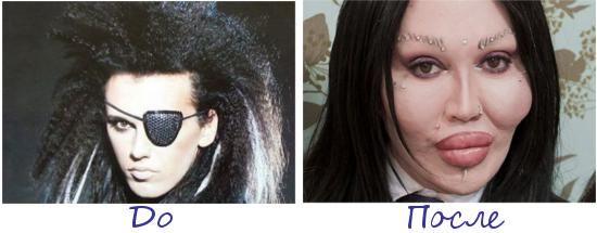 Пит Бернс (Pete Burns) жертва пластической хирургии фото до и после