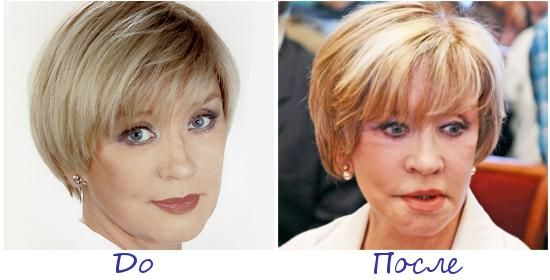 Вера Алентова жертва пластической хирургии фото до и после