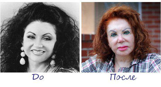Жертва пластической хирургии Жаклин Сталлоне (Jacqueline Stallone) фото до и после