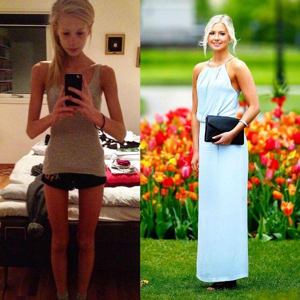 Молодая девушка победила анорексию фото