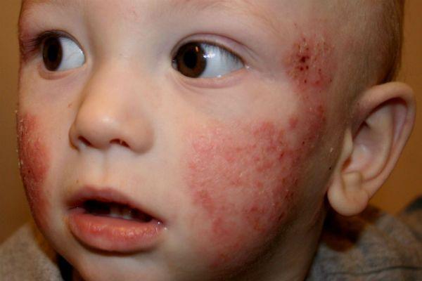 Стрептодермия у детей фото