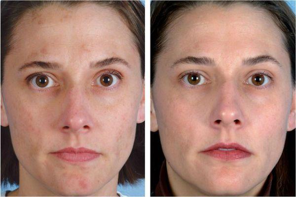 Ультразвуковая чистка лица 2 фото