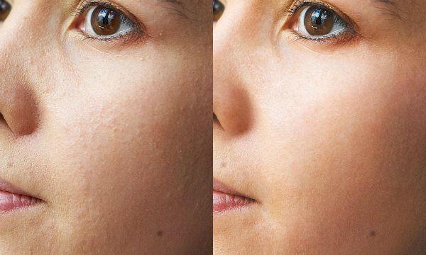 Ультразвуковая чистка лица 5 фото