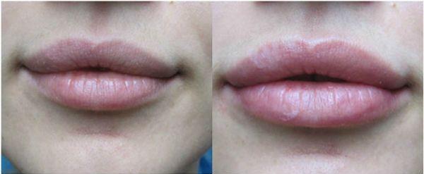 Увеличение губ гиалуроновой кислотой фото