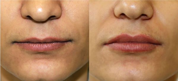 Увеличение губ гиалуроновой кислотой 2 фото