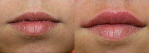 Увеличение губ гиалуроновой кислотой 3 фото