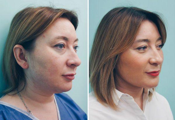 Результат после применения упражнений фесбилдинг для коррекции лица и черт фото