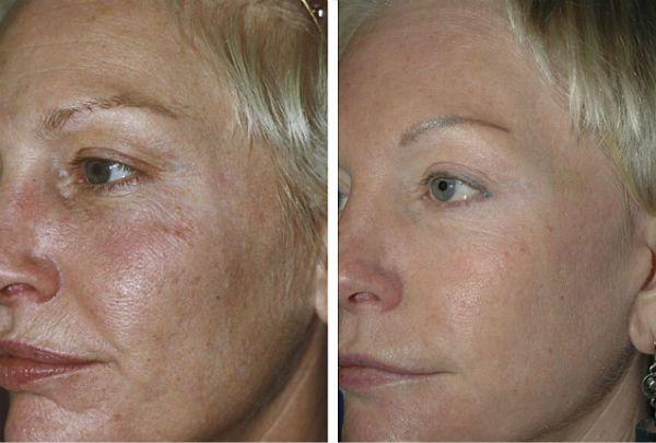 Улучшение кожных покровов фото