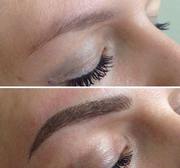 До и после процедуры фото