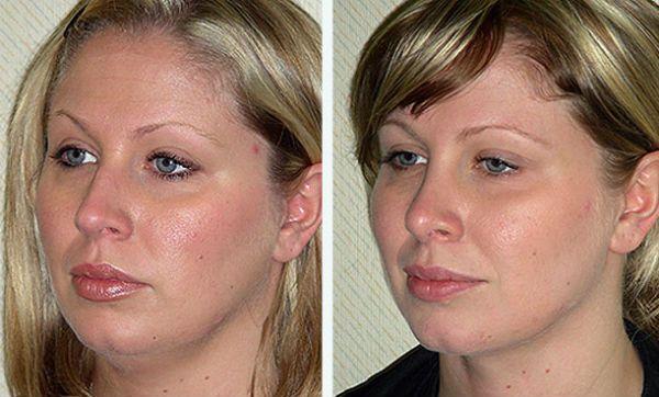 Косметическая коррекция щек путем удаления жировых отложений фото