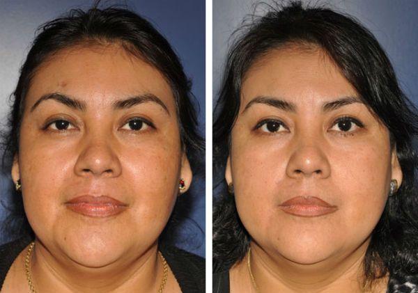Как сделать лицо более худым и выразительным фото