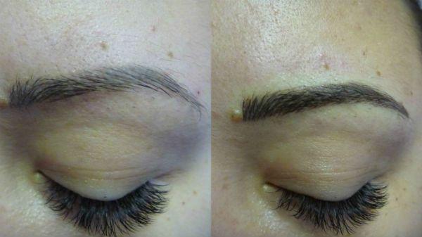 Волосковый метод реконструкции фото