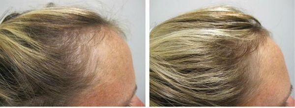 Пример применения биотина для волос фото до и после фото