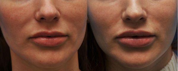 Булхорн фото до и после процедуры