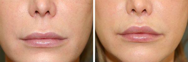 Фото до и после булхорна