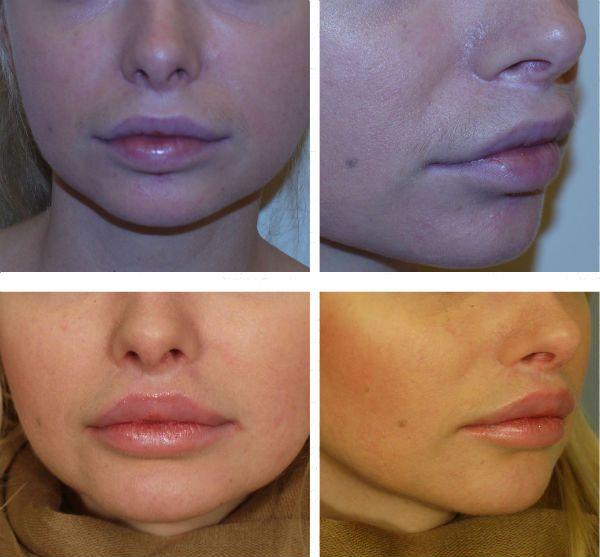 Пластика верхней губы до и после