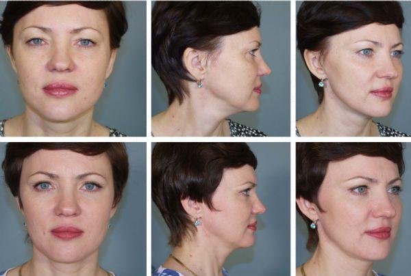 Блефаропластика верхних и нижних век фото до и после