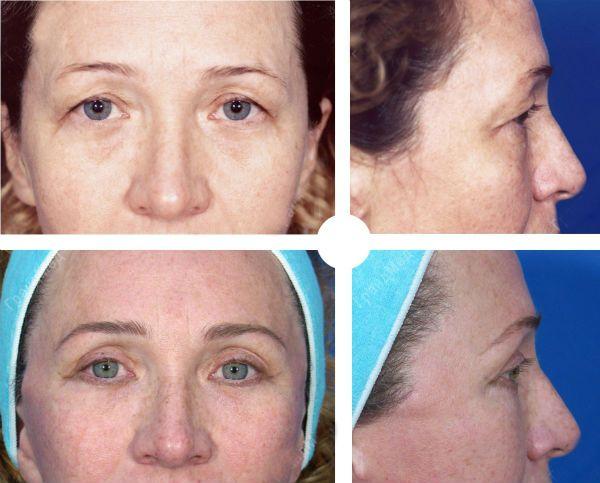 Блефаропластика верхних век фото до и после процедуры