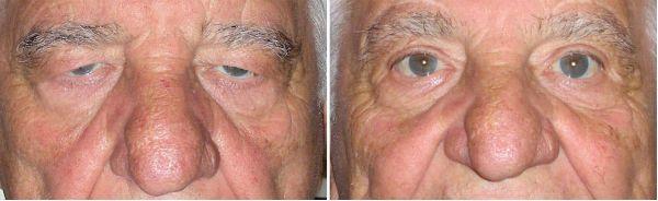 Блефаропластика верхних век у мужчины фото до и после