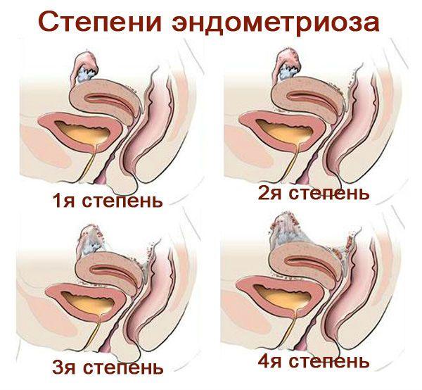 Степени эндометриоза фото