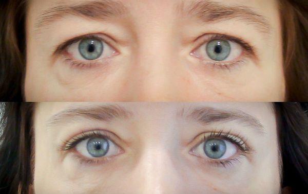 Фото до и после блефаропластики верхних век