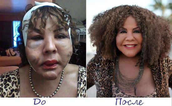 Раджи Наринесинг жертва пластической хирургии фото