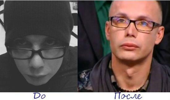 Сергей Каплан жертва пластической хирургии фото