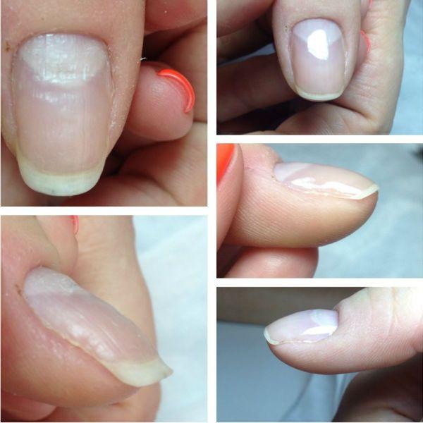 Выравнивание ногтей базой гель-лака фото
