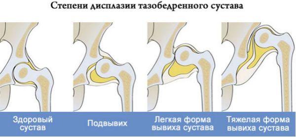 Степени дисплазии тазобедренных суставов фото