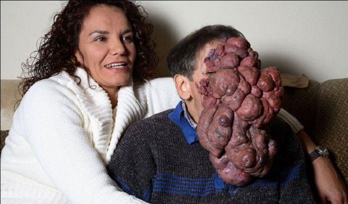 Хосе Местре с опухолью фото